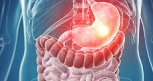 لمرضى قرحة المعدة.. نظامك الغذائي للحفاظ علي صحتك